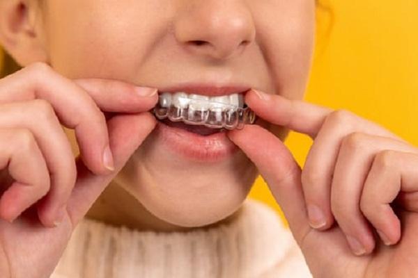 A Girl wearing a teeth aligner