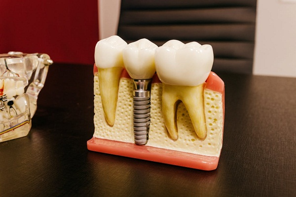 A model of tooth implant